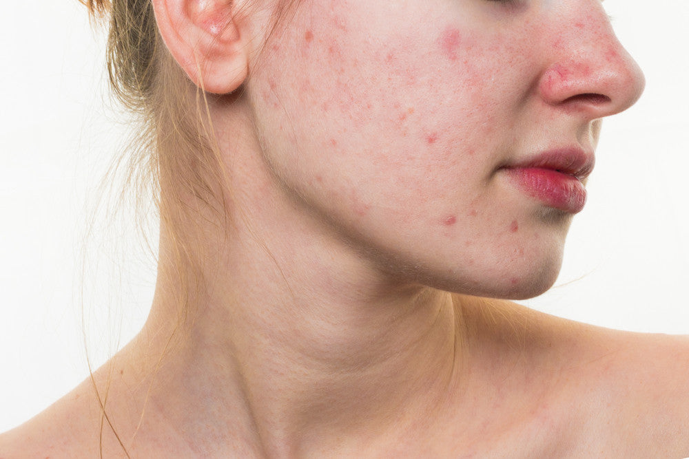 Get rid of your acne by healing your gut!