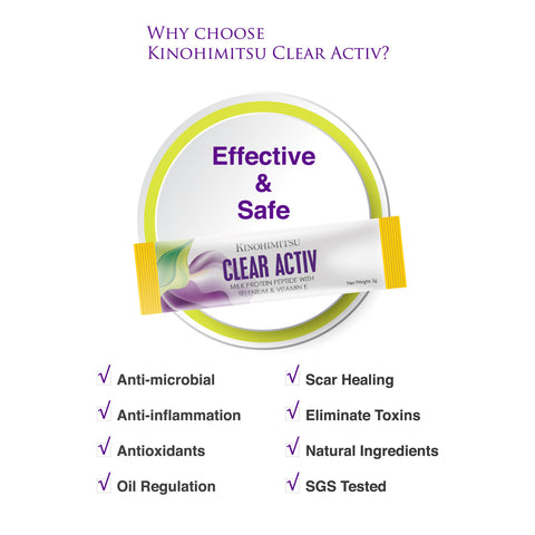 Clear Activ 15's