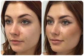 Cheek and Lip Augmentation with Dermal filler ModBod