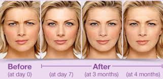 Botox Before and After ModBod, Rangiora, Christchurch, North Canterbury