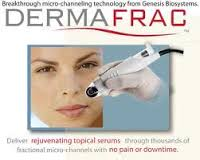 Derma Frac ModBod Rangiora Christchurch North Canterbury
