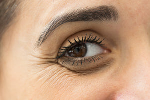 How To Reduce Dark Circles And Under Eye Bags