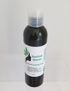 Acne Purifying Toner 4oz btl - Buttertherapy.com