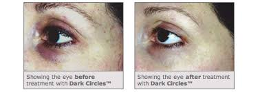 Medik8 Dark Circles Eye Gel $69 - normally $89