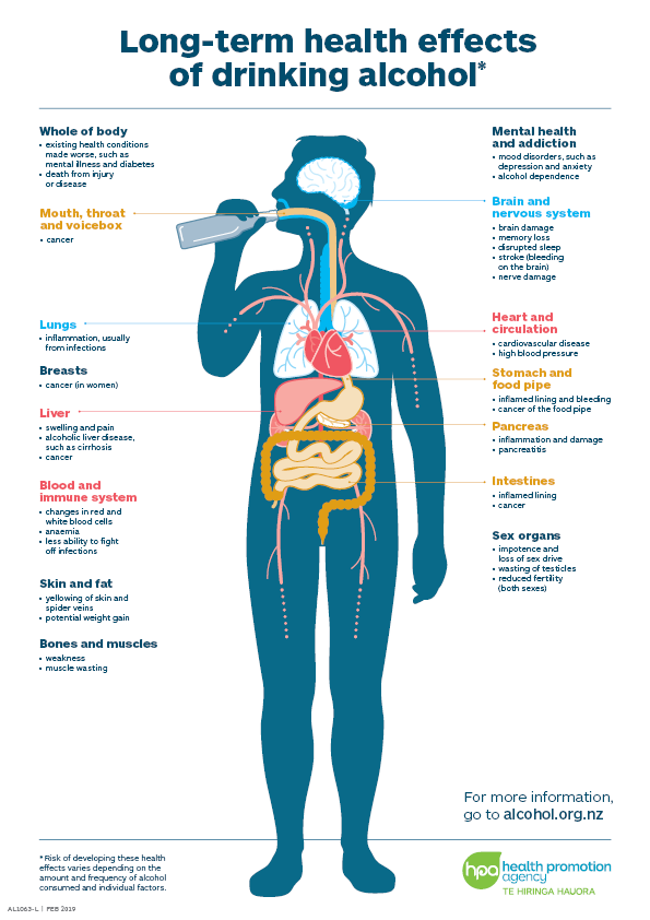 Long-term effects of drinking alcohol A4 poster