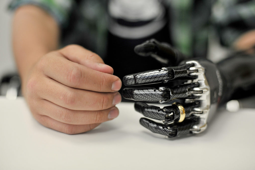 Image of a bionic hand