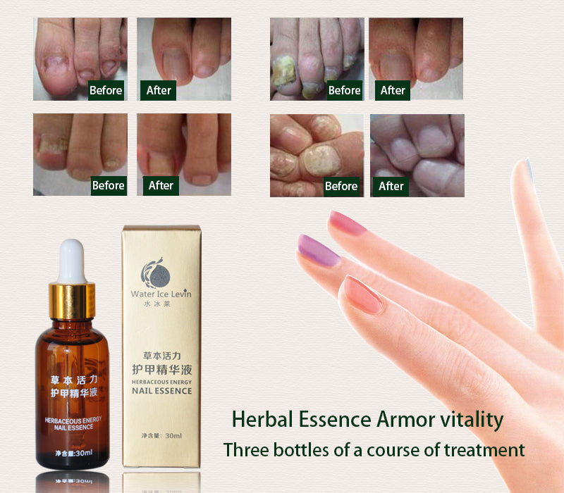 Fungal Nail Treatment Essence Nail and Foot Whitening Toe Nail ...