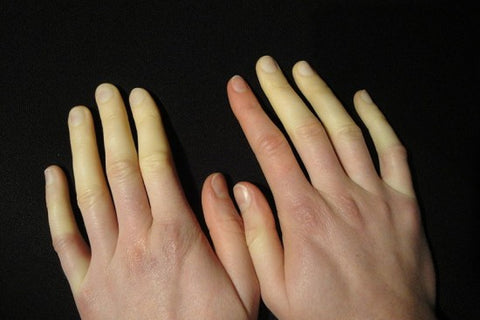 this is what Raynaud's syndrome looks like