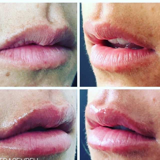 Lip Filler Special / BLACK FRIDAY