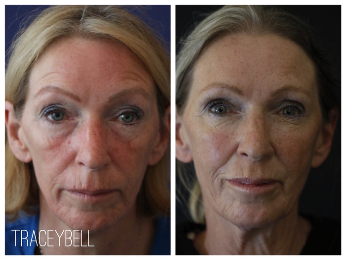 New Year New You  - Personalised Dermal filler Package