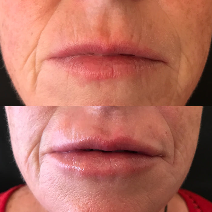 Christmas Offers - Perfect Lip £169.00