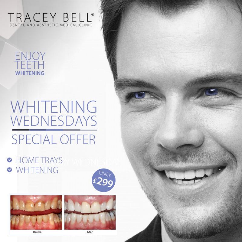 Whitening Wednesday