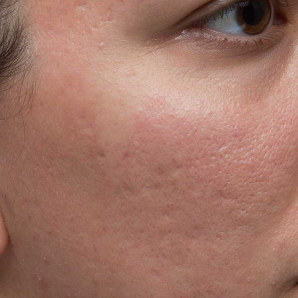 Reverse Anti-Aging Light Therapy – SKINCLINICAL