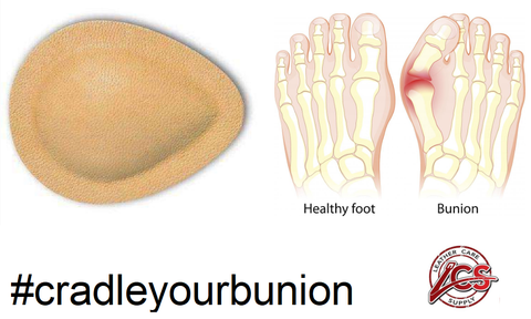 Cradle your bunion cushion your bunion