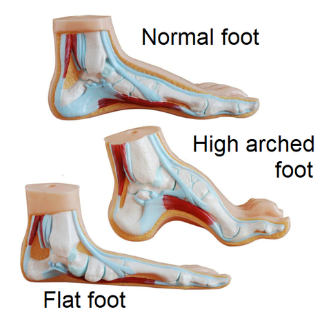 High arch Flat and normal feet
