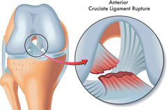 ACL Tear Anterior Cruiciate Ligament Rupture
