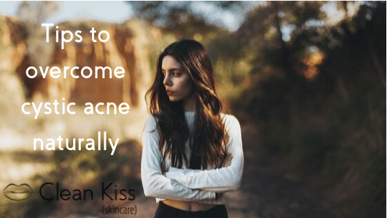Tips to Help You Overcome Cystic Acne, Naturally  - Updated 2020