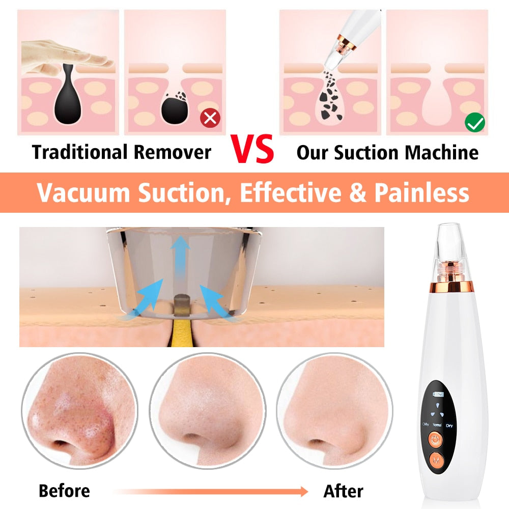 Blackhead Remover Tool Vacuum Pore Cleaner, Electric Comedone Acne Extractor