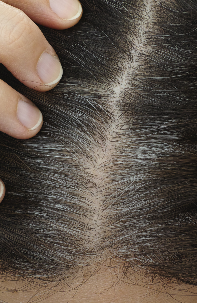 5 of the Most Common Hair Myths: True or False?