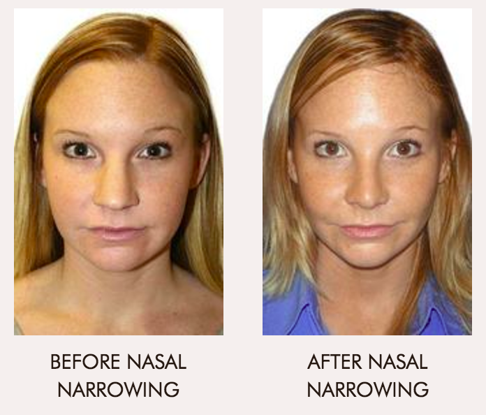 RHINOPLASTY (NOSE JOB) IN WASHINGTON DC