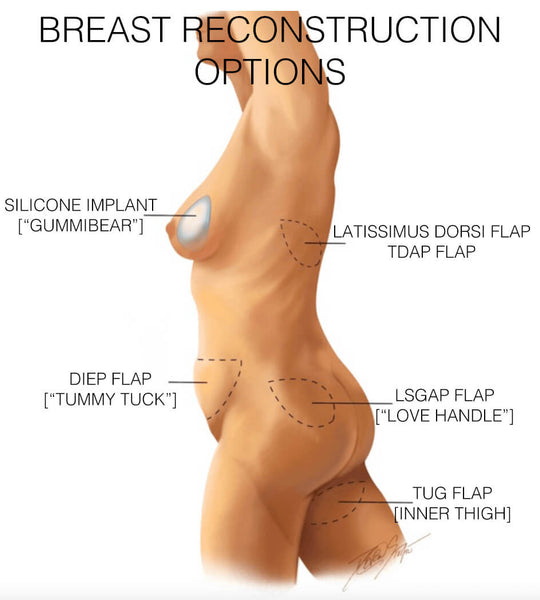 Image of breast cancer reconstructive options
