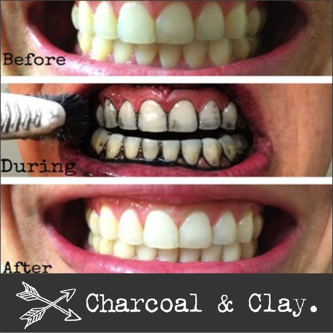 f1b5962a240 100% PURE ACTIVATED CHARCOAL POWDER Teeth Whitening Detox Mask + mor ...