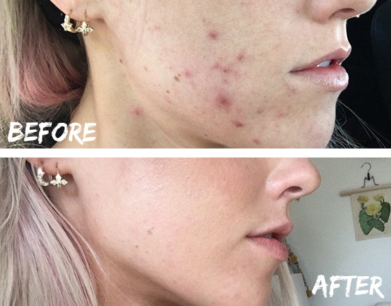 before and after results using clay detox mask for acne