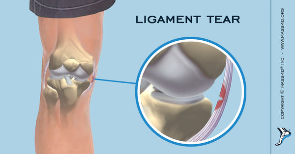 Causes And Symptoms Of Mcl Injury