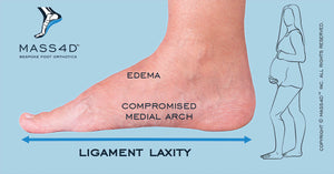 Pregnancy Effects on Foot