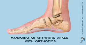Managing An Arthritic Ankle with Orthotics