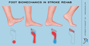 Foot Biomechanics As A Component of Stroke Rehab