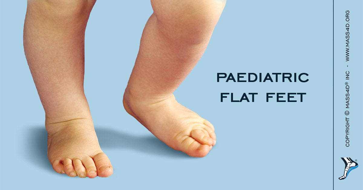 the effects of flat feet in children mass4d insoles and foot