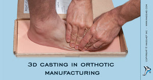 3D Casting in Orthotic Manufacturing