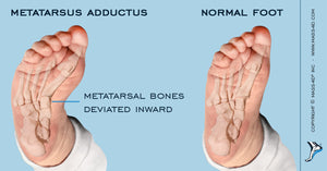 Treating The Metatarsus Adductus Foot