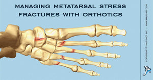 Managing Stress Fractures with Orthotics