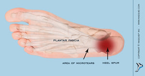 Assessing The Cause of Plantar Fasciitis