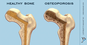 Orthotic Care for Osteoporosis