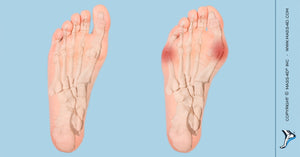 Hyperpronation As a Cause of Hallux Valgus