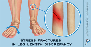 Stress Fractures in Leg Length Discrepancy