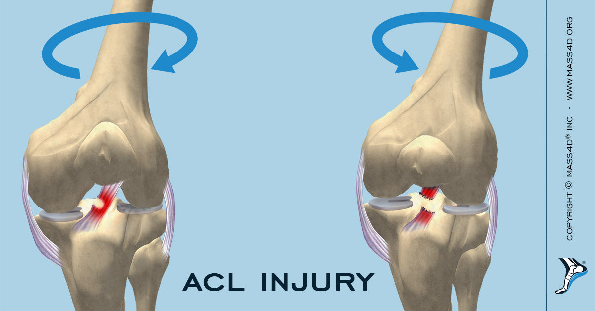 Causes and Symptoms of ACL Injury   MASS4D® Insoles - MASS4D ...