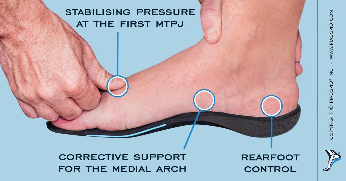 Orthotic Care for the Pes Cavus Foot - MASS4D® Foot Orthotics