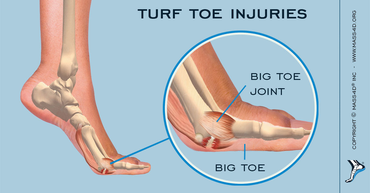 What Are Turf Toe Injuries? | MASS4D® Insoles - MASS4D® Insoles and ...