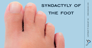 Syndactyly of the Foot