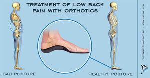 Treatment of Low Back Pain with Orthotics