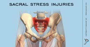 Sacral Stress Injuries