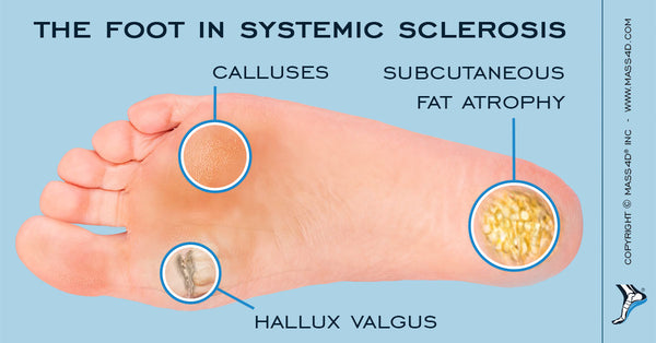 Foot Problems in Systemic Sclerosis - MASS4D® Foot Orthotics