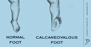 Calcaneovalgus Foot