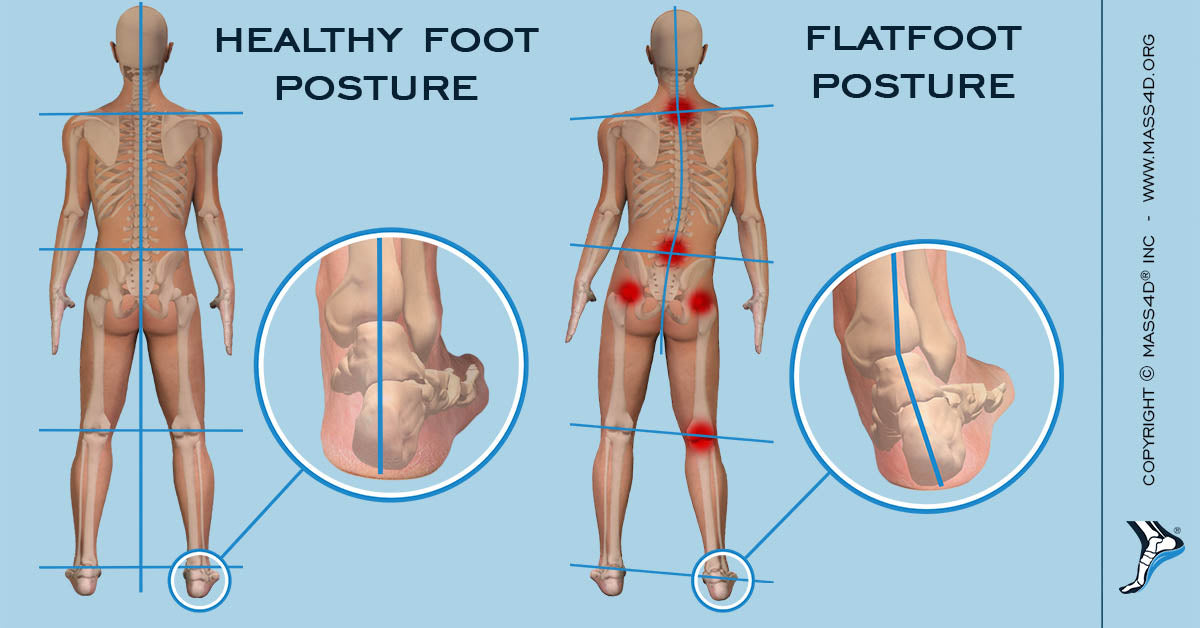 what is body posture