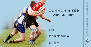 Preventing Rugby Injuries of the Lower Extremity