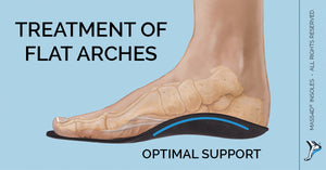 Flat Feet Treatment With Insoles